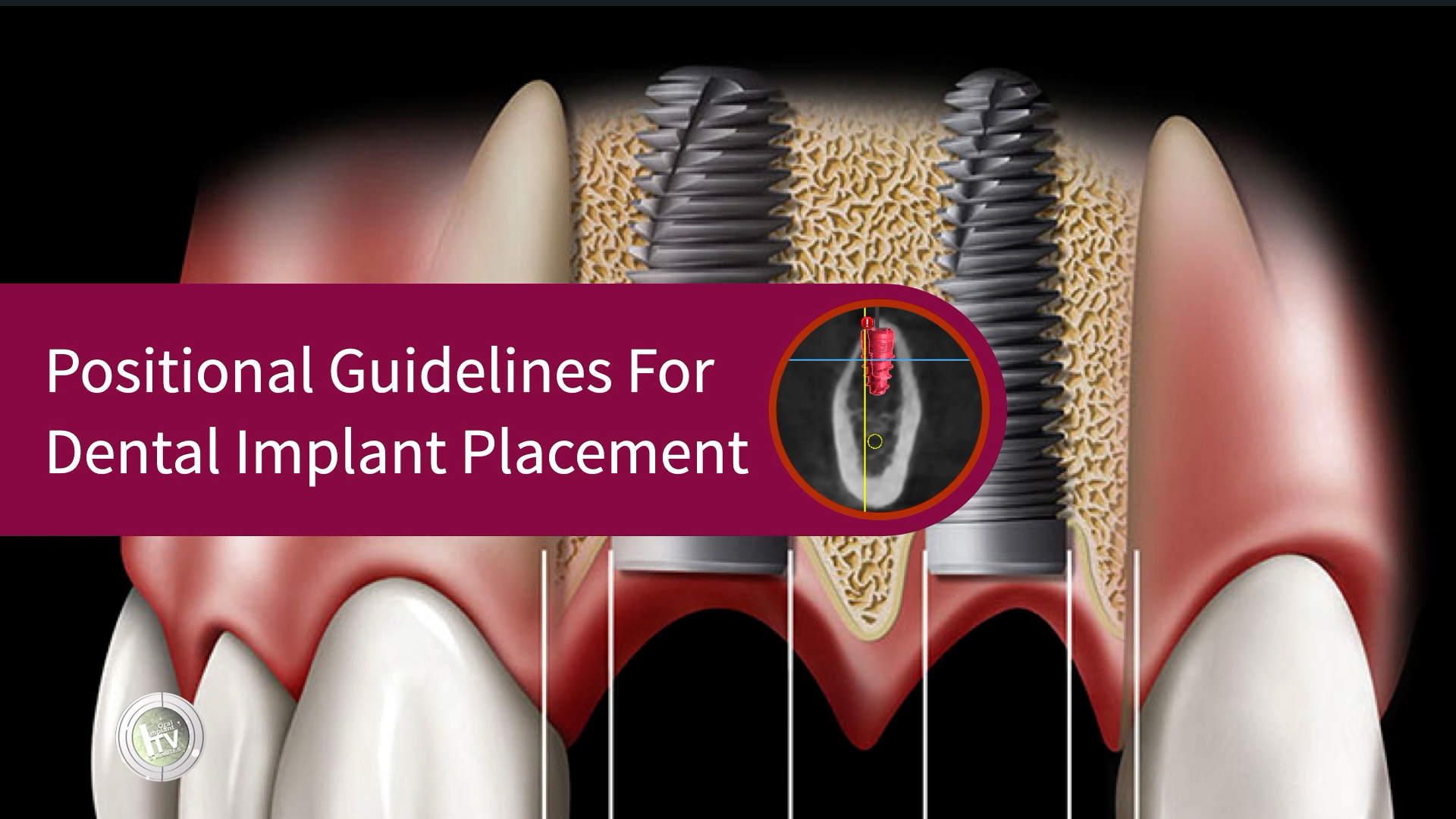POSITIONAL GUIDELINES FOR DENTAL IMPLANT PLACEMENT
